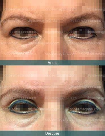 Blefaroplastía superior y levantamiento de cejas