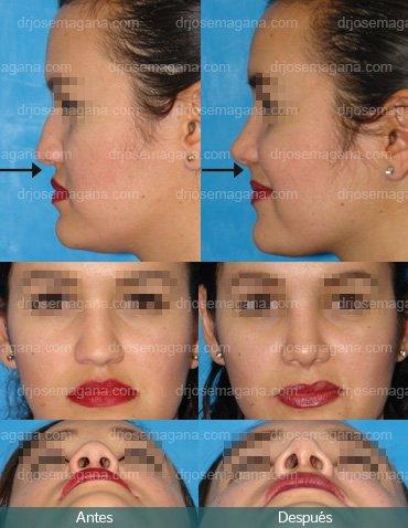 Implante premaxilar y rinoplastía