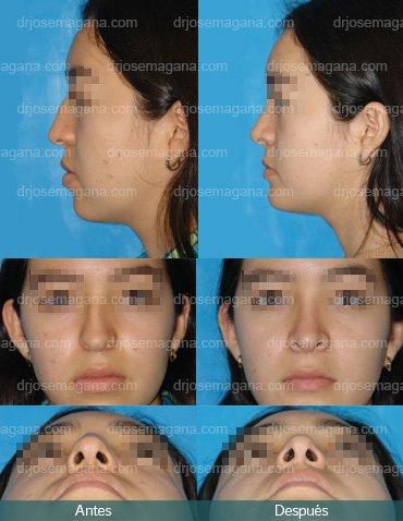 Rinoplastía, implante premaxilar  y mentoplastía