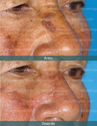 Resección de tumoración facial